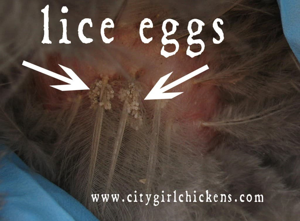 how to take out lice eggs